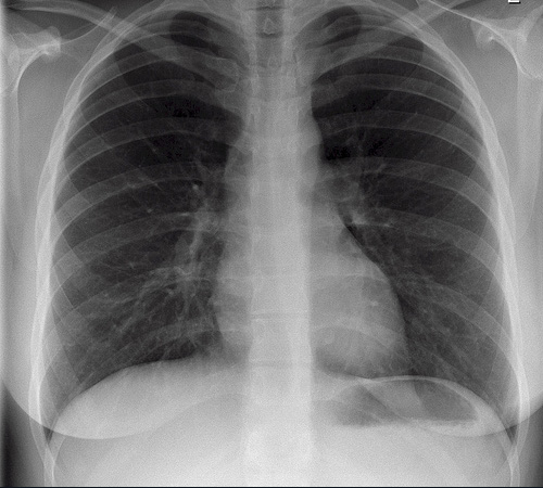 healthy chest x ray example